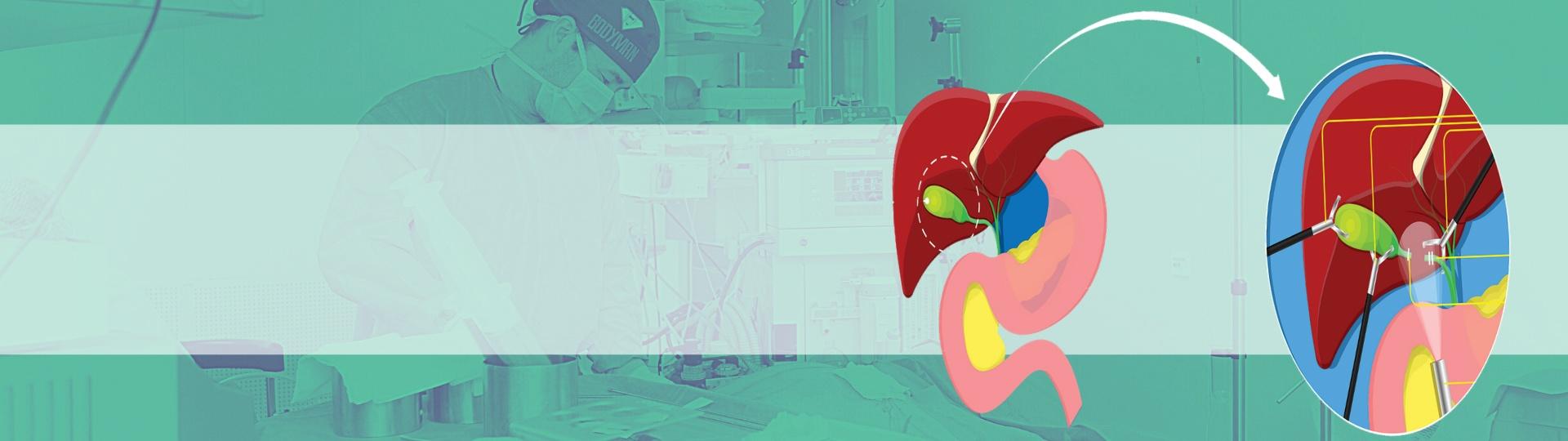 Gallbladder Banner