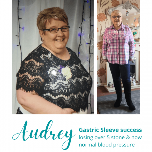 Audrey's Gastric Sleeve Success