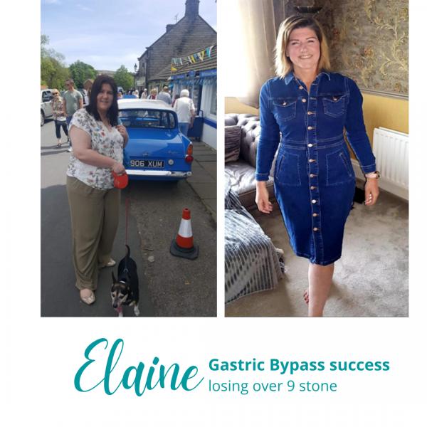 Elaine's Gastric Bypass Success