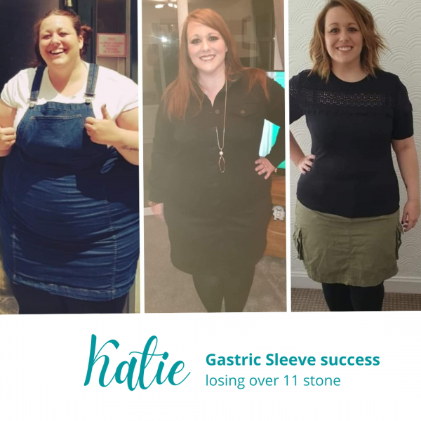 Katie's Gastric Sleeve Success Story