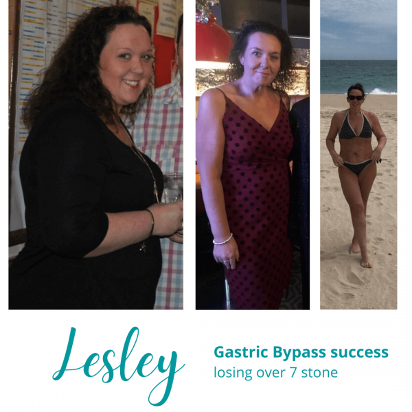 Lesley's Gastric Bypass Success