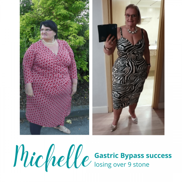Michelle's Gastric Bypass Success