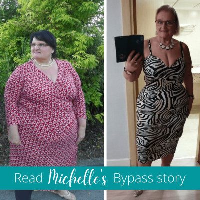 Michelle's Bypass Story